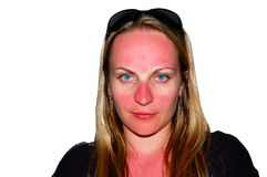 Sunburns on a girl's face Royalty Free Stock Images