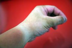 Sunburnt hand Stock Image