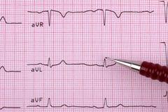 Sund hjärtakardiogram Arkivbild