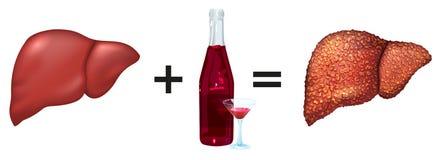 Sund lever och alkohol får cirrhos stock illustrationer