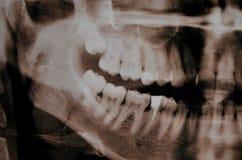 Supercomplete tänder Röntgenstråle royaltyfri bild