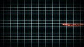 Supervisión del ritmo cardíaco del infarto de Miocardial ilustración del vector