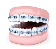 Suportes do dente e da maxila no fundo branco Imagens de Stock