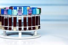 Support des tubes de sang avec des échantillons dans le laboratoire Photographie stock libre de droits