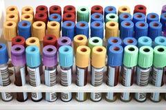 Support des tubes de sang marqués dans le laboratoire de banque du sang Photos libres de droits
