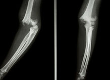 Supracondylar humerus fracture. Film X-ray elbow show Supracondylar humerus fracture stock image