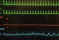 Supraventricular Tachycardia, Arterial Blood Pressure and Oxygen Saturation on Monitor. Monitor showing supraventricular tachycardia in green, arterial blood Stock Image
