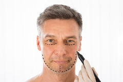 Surgeon Drawing Correction Lines On Man Face Stock Images