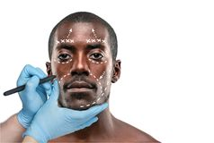 Surgeon drawing marks on male face against gray background. Plastic surgery concept. Afro american male model royalty free stock photos