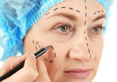 Surgeon hand drawing marks on female face for  operation Royalty Free Stock Photo