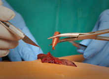 A surgeon holds a bloody bullet Stock Images