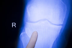 Surgeon and knee xray scan Royalty Free Stock Photography