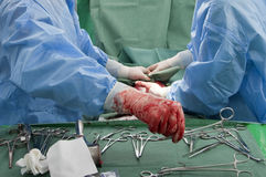 Surgeons hands in operation Stock Photo