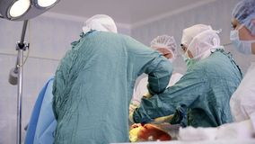 Surgeons in uniform perform arthroplasty Stock Footage