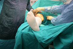 Surgery doctors Royalty Free Stock Photo