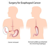Surgery for esophageal cancer vector illustration
