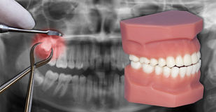 Surgery extraction over x-ray. Surgery extraction simulation, over dental scan Royalty Free Stock Photo