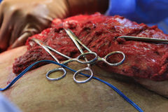 Surgery and hemostats royalty free stock photography