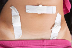 Surgery incisions for a laparoscopic  surgery Stock Photography