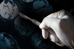 Surgery knife in doctor hand,MRI film Stock Images