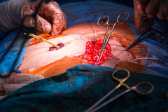 Surgery in a modern hospital being performed Royalty Free Stock Images