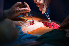 Surgery in a modern hospital Stock Photo