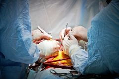 Surgery operation. Hands of surgeon team performing operation at cardiology surgery clinic Stock Photo