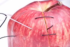 Surgical apple Stock Photo