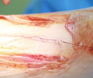 Surgical suture. Surgical wound on a limb Stock Image