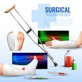 Surgical Traumatology Concept. Surgical traumatology realistic concept with hand foot and leg injury symbols vector illustration Royalty Free Stock Photography