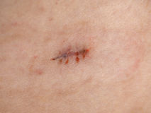 Surgical wound stitches removed Royalty Free Stock Images