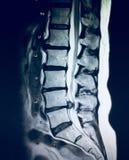 Surowa patologia dolędźwiowego kręgosłupa herniation mri zdjęcia royalty free