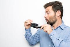 Surprised man losing hair royalty free stock image