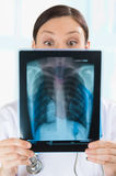 Surprised and very excited female doctor looking at x-ray. Surprised and very excited female doctor looking at a lungs or torso xray, fluorography Royalty Free Stock Photo
