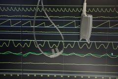Surveillance de patient dans l'hôpital images libres de droits