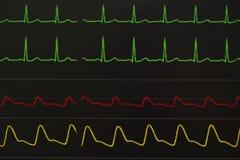 Surveillance des affichages des signes vitaux patients photo stock