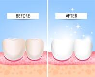Sus dientes enfermos y un sano Ayuda visual para los estudiantes, dentistas, pacientes de la clínica La derrota es una fuente de  stock de ilustración