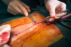 Suture close sternotomy incision. Surgeon suture close sternotomy incision Stock Photography