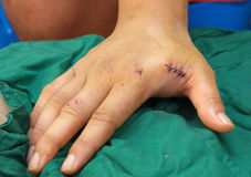 Suture stitch. Royalty Free Stock Images