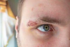 Sutursår på framsida av den unga mannen, slut upp arkivfoto