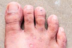 Svamp för psoriasis för fot för Closeuphudathlete's, Hong Kong fot, Royaltyfria Bilder