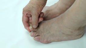 Svamp- infektion spikar på av fot för person` s stock video