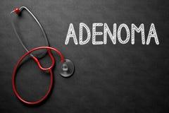 Svart tavla med Adenomabegrepp illustration 3d Arkivfoton