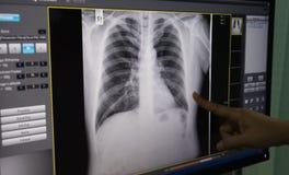 Svartvit kropp, stöd, lunga, hjärta, filmröntgenstråle arkivfoto