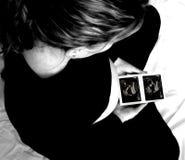 svepa ultrasounden Royaltyfria Foton