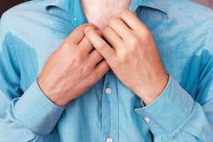Svettig fläck på skjortan på grund av värmen, bekymren och diffiden Arkivfoton
