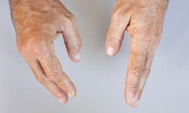 Svullen hand och sund male hand Royaltyfri Bild