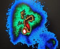 Gallbladder jądrowy obraz cyfrowy Fotografia Stock