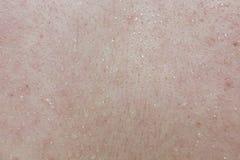 Sweat drops on human skin Royalty Free Stock Photo