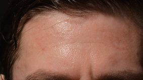 Sweating man forehead - Close up. Sweating man forehead -Close up royalty free stock images